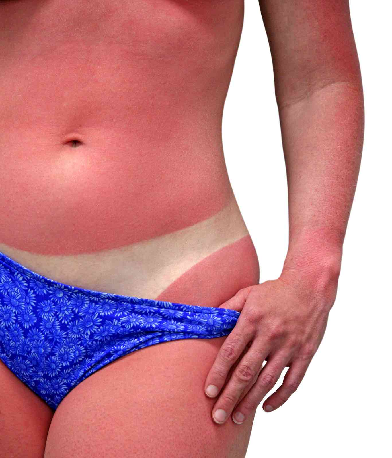 sunburn is a safety issue