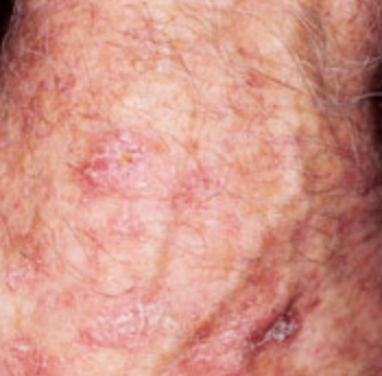 Actinic keratosis on head