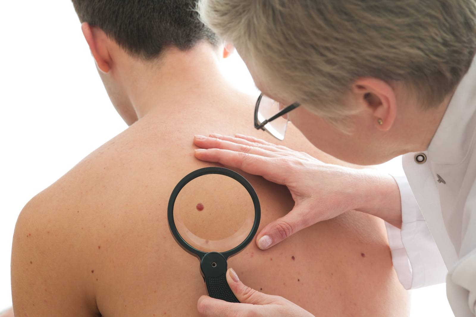 skin cancer checkup