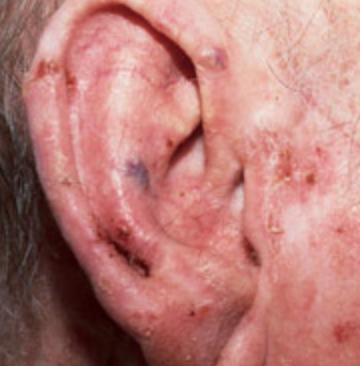 Actinic keratosis ear