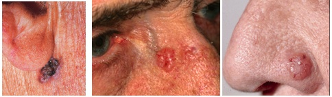 basel cell carcinomas