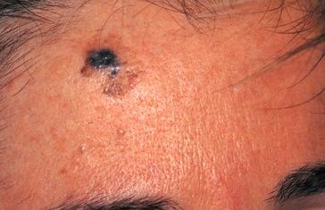 Melanoma on forehead