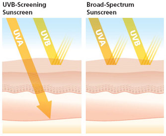uvb vs  broad spectrum