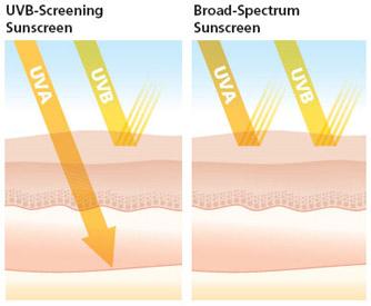 uvb vs  broad spectrum