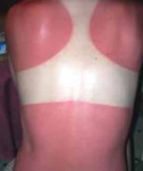 sun burn on back