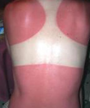 burnt-back