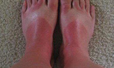 sun burn on feet